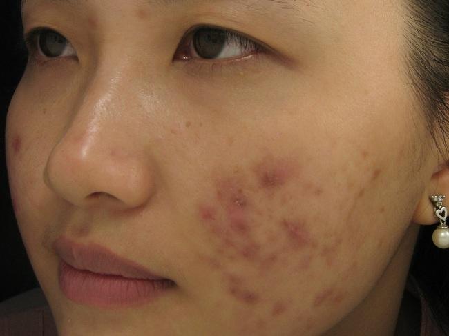 Sẹo thâm là hậu quả của việc điều trị mụn mủ không đúng cách