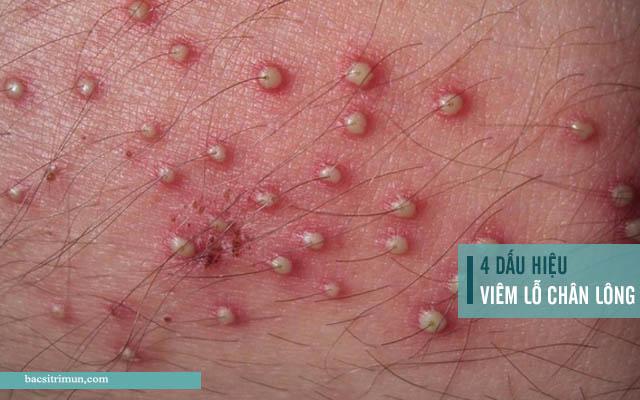 dấu hiệu viêm lỗ chân lông