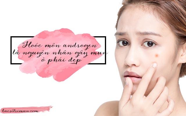 Tăng hoóc môn androgen là nguyên nhân mọc mụn