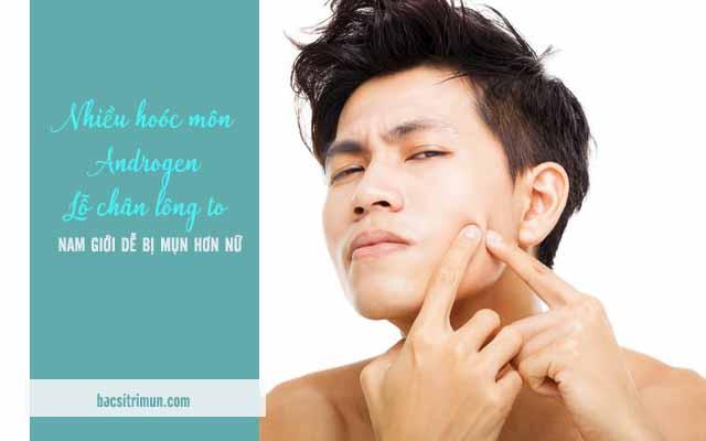 hoóc môn là 1 trong các nguyên nhân gây mụn ở nam giới