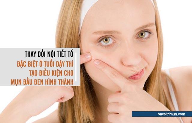 nội tiết tố là nguyên nhân gây mụn đầu đen