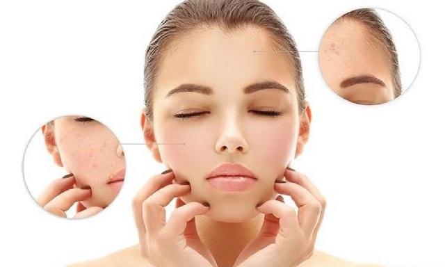 Cách trị mụn cho da khô tại nhà hiệu quả