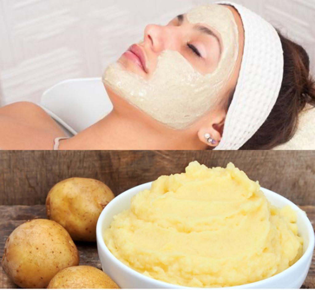 Sử dụng sữa chua và khoai tây để trị mụn đầu đen