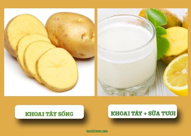 Cách làm mặt nạ khoai tây trị mụn với sữa tươi