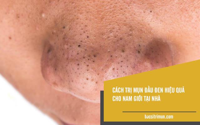cách trị mụn đầu đen hiệu quả cho nam giới