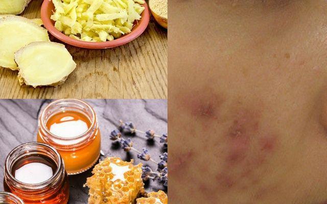 Mẹo trị thâm mụn bằng mật ong và gừng