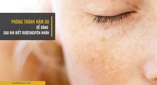 nguyên nhân gây nám da và cách phòng tránh