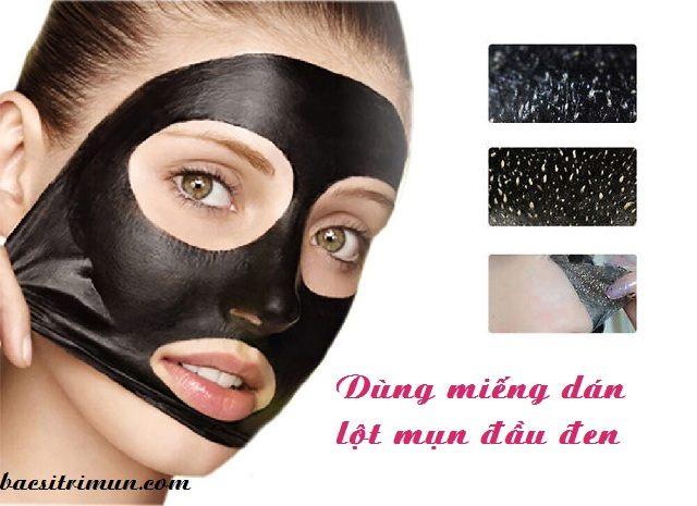 cách chữa mụn đầu đen bằng miếng dán lột mụn