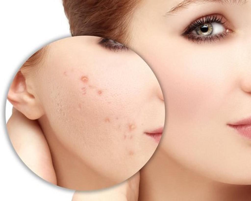 Rửa mặt bằng nước muối pha loãng giúp ngăn ngừa sẹo thâm sau mụn