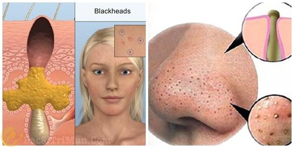 Mụn đầu đen xuất hiện nhiều trên da