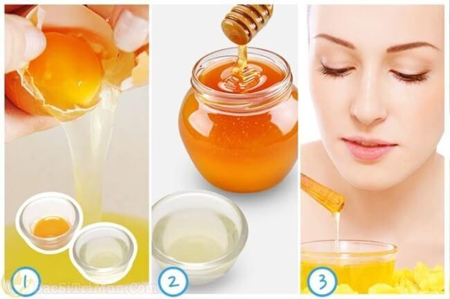 Mặt nạ trị mụn tự nhiên từ mật ong và lòng trắng trứng