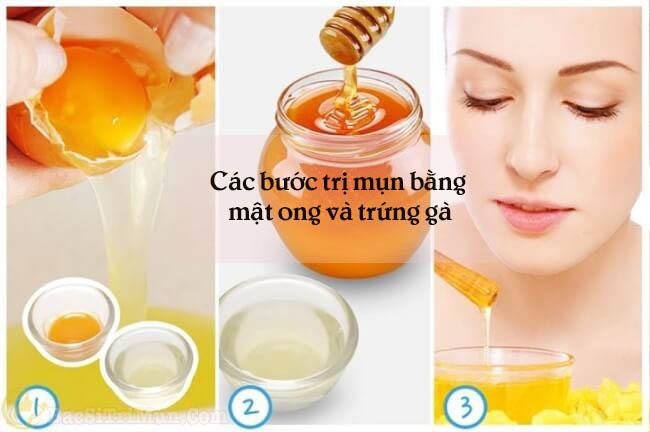 Trứng gà và mật ong là một trong các loại mặt nạ trị mụn hiệu quả