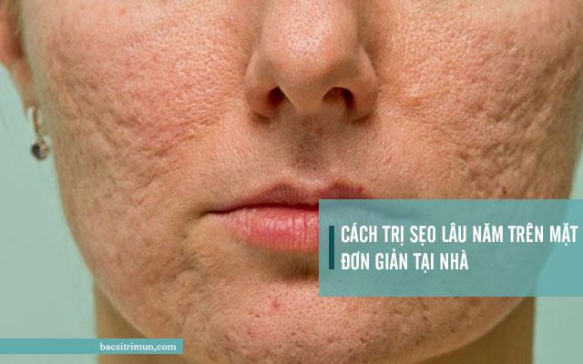 cách trị sẹo lâu năm trên mặt