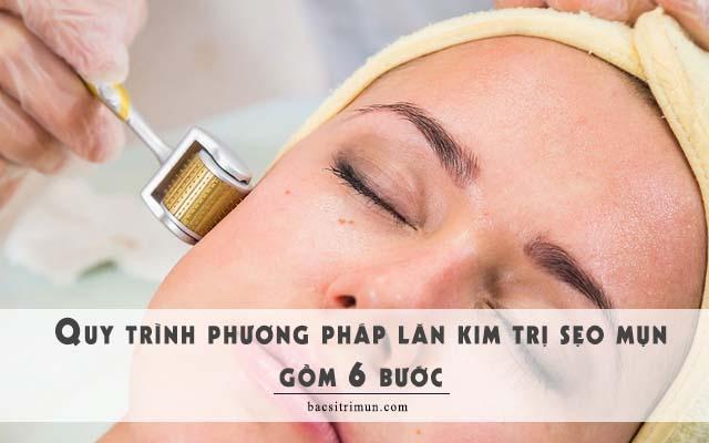 quy trình lăn kim trị sẹo mụn