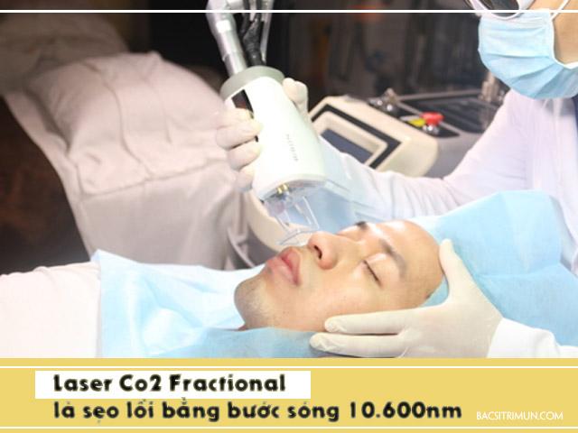 là sẹo lồi bằng Laser Co2 Fractional