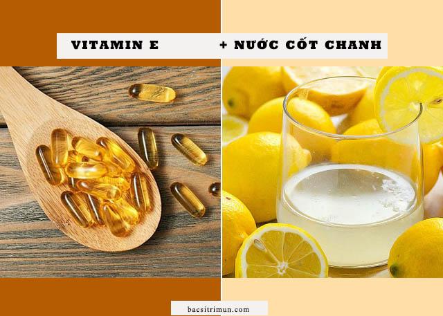 Cách trị sẹo rỗ bằng vitamin e và nước cốt chanh