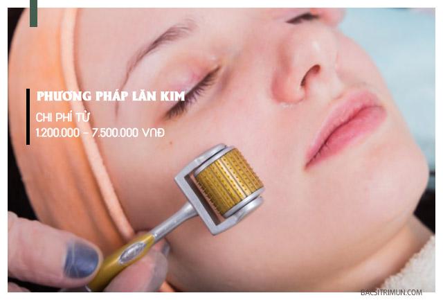 chi phí trị sẹo lõm bằng phương pháp lăn kim