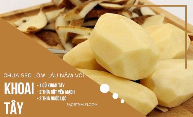 trị sẹo lõm lâu năm bằng khoai tây