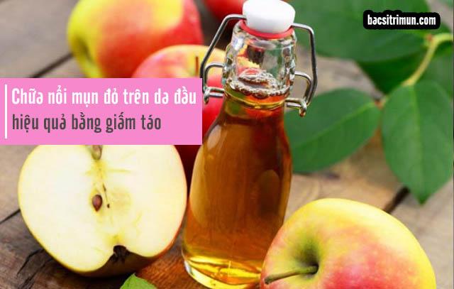 Giấm táo chữa da đầu nổi mụn đỏ