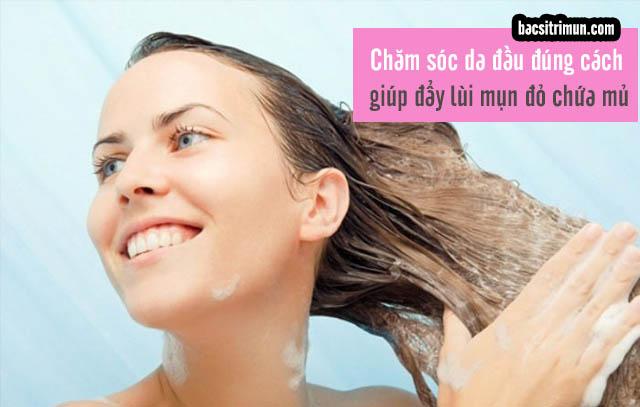 Da đầu nổi mụn đỏ chứa mủ cần được gội thường xuyên