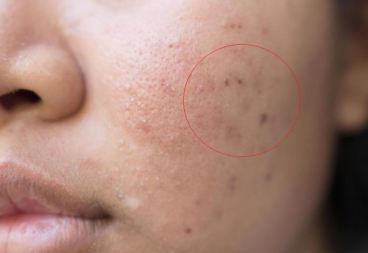 Cách trị sẹo mụn hiệu quả