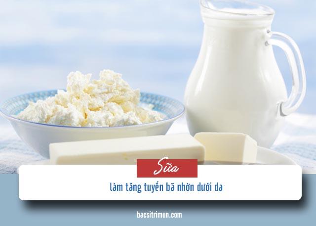 kiêng ăn gì khi bị mụn trứng cá: sữa