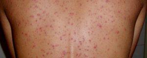 Cách chăm sóc vùng da lưng - ngăn ngừa mụn tối đa -1