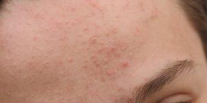 Mụn cứng ẩn dưới da và không đau phải làm sao-1