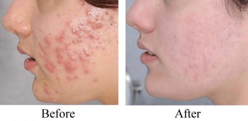 Trước và sau khi sử dụng sữa rửa mặt Papulex Gel Moussant