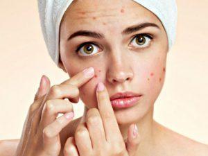 Mẹo dùng dầu mù u trị mụn cực hiệu quả -1