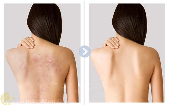 Sữa tắm Acnes Body Shower điều trị mụn lưng hiệu quả