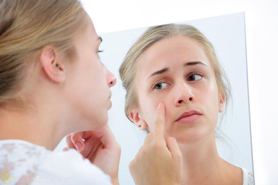 Mụn xuất hiện nhiều trên bề mặt da