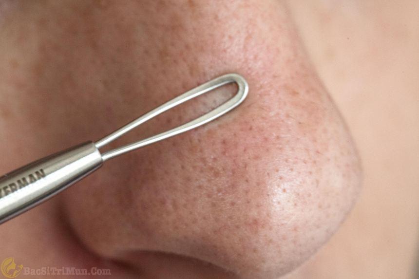 Bạn sử dụng que nặn mụn ấn nhẹ để nhân mụn trồi lên khỏi da