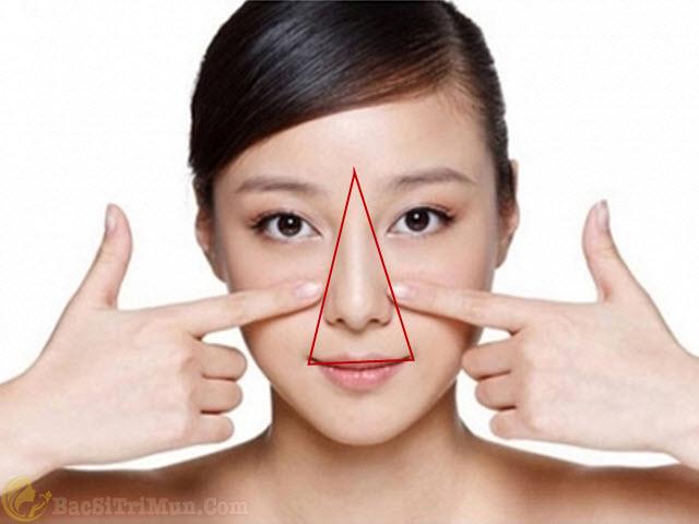 Mụn đầu trắng thường mọc ở mũi, má, cằm