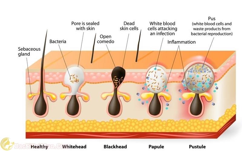 Làn da giảm mụn nhờ sử dụng sữa rửa mặt chứa Axit salicylic