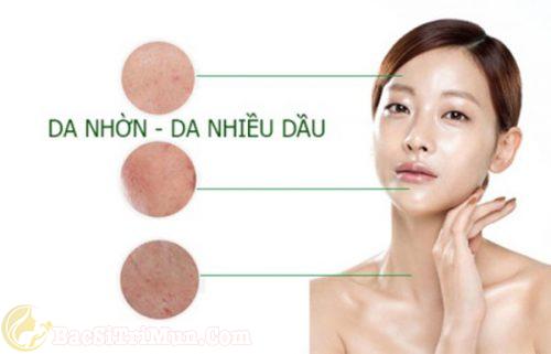 loại sữa rửa mặt trị mụn cho da nhờn