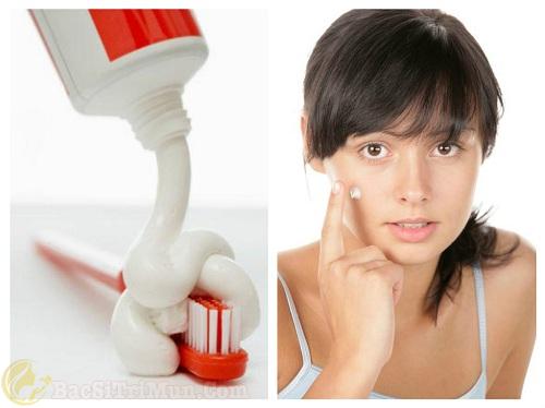 Chữa trị mụn đầu trắng bằng kem đánh răng