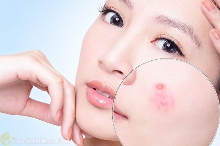Sữa rửa mặt Neutrogena Oil Free Acne Wash điều trị mụn
