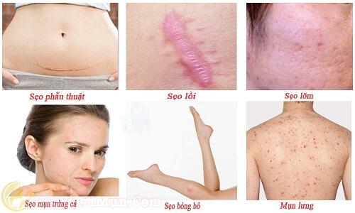 Sử dụng kem trị sẹo thâm Scar Esthetique