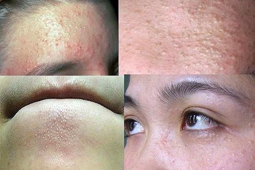 Mụn đầu trắng xuất hiện trên bề mặt da