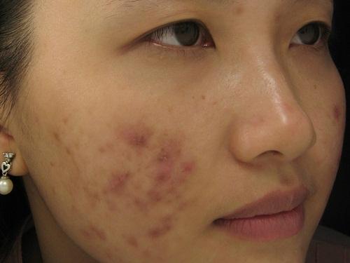 Nặn mụn đầu trắng có thể để lại vết thâm trên da