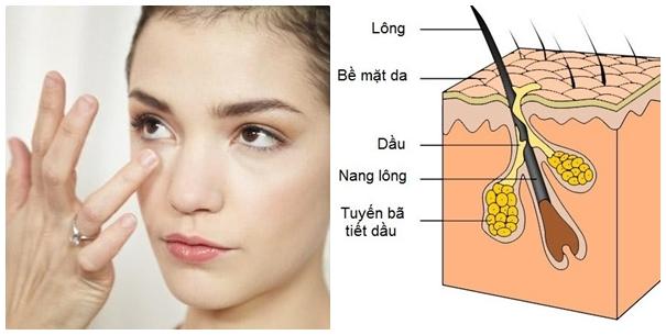 Nặn mụn đầu trắng khiến mụn lây lan sang vùng da xung quanh