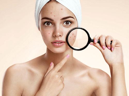 Những khuyết điểm trên da