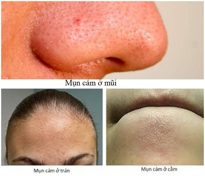 Mụn cám xuất hiện nhiều trên bề mặt da