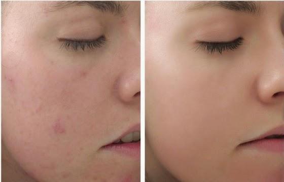 Sữa rửa mặt Innisfree Bija Trouble Facial Foam trị mụn