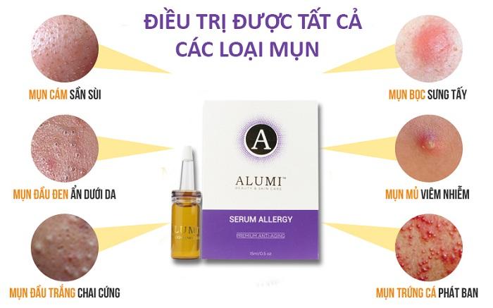 tác dụng serum trị mụn Alumi