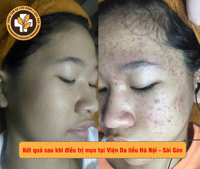 Kết quả trị mụn sau 3 tháng của khách hàng tại Viện Da liễu Hà Nội - Sài Gòn