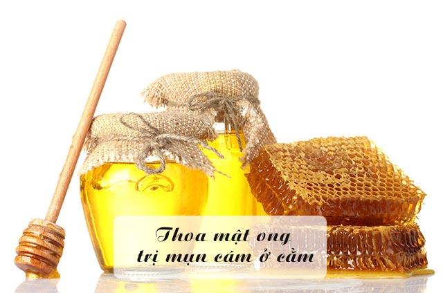 trị mụn cám ở cằm bằng mật ong