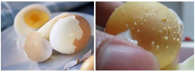 Chữa mụn cám dưới cằm bằng trứng gà luộc