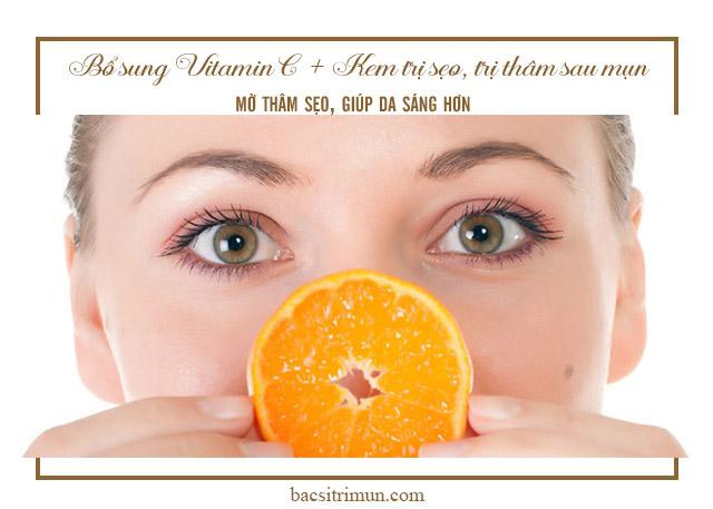 bổ sung vitamin C khi chăm sóc da sau mụn